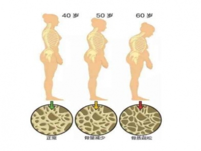 超声骨密度仪建议人到中年尤其是50岁以后要经常检测骨密度