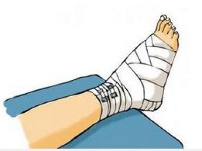 四个阶段教你骨折后怎样进行康复训练